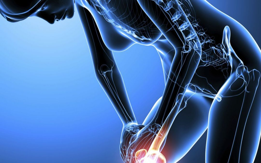 L'Artimium : enfin une vraie solution pour l'arthrose ?